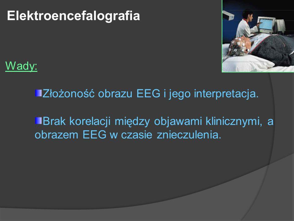 Wady: Złożoność obrazu EEG i jego interpretacja. Brak korelacji między objawami klinicznymi, a obrazem EEG w czasie znieczulenia. Elektroencefalografi