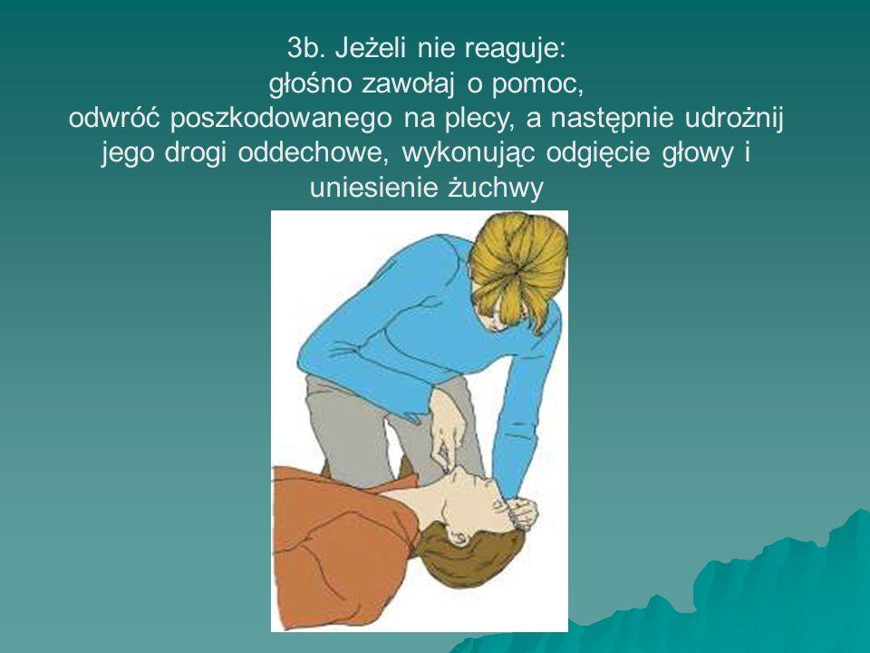 3b. Jeżeli nie reaguje: głośno zawołaj o pomoc, odwróć poszkodowanego na plecy, a następnie udrożnij jego drogi oddechowe, wykonując odgięcie głowy i