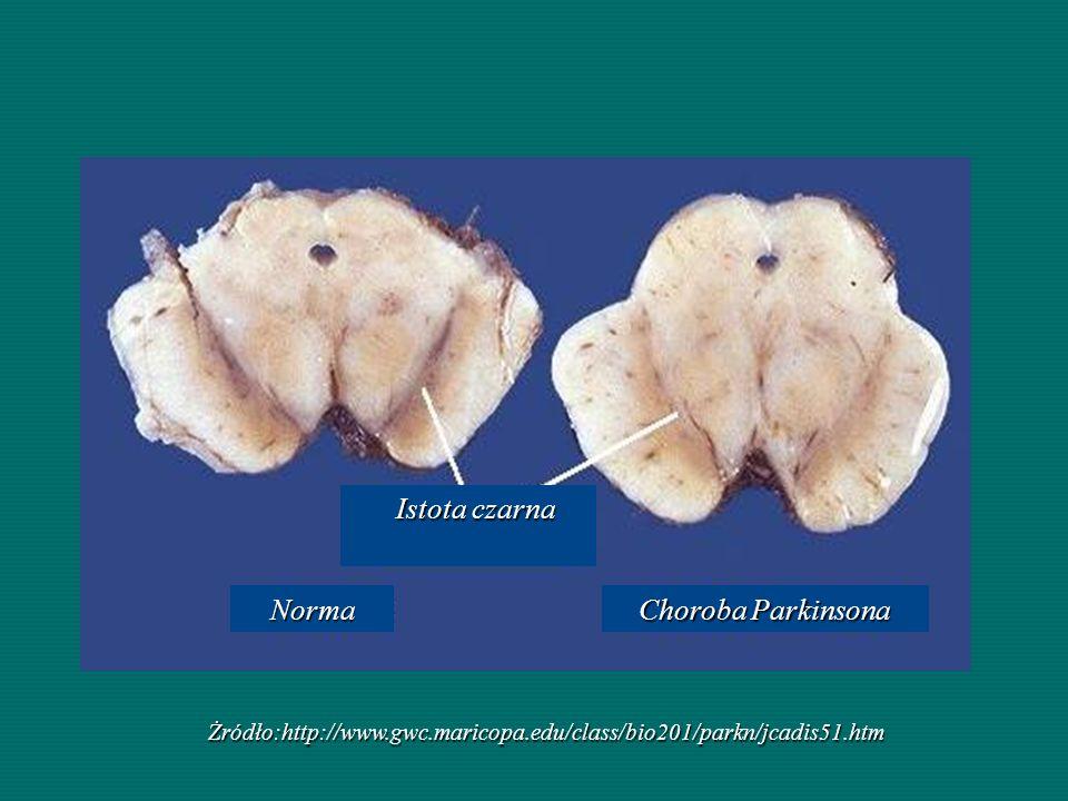 Żródło:http://www.gwc.maricopa.edu/class/bio201/parkn/jcadis51.htm Choroba Parkinsona Norma Norma Istota czarna Istota czarna