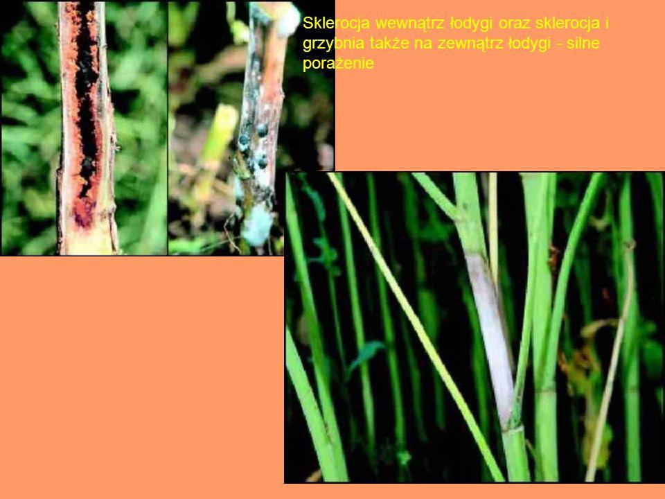 Sklerocja wewnątrz łodygi oraz sklerocja i grzybnia także na zewnątrz łodygi - silne porażenie