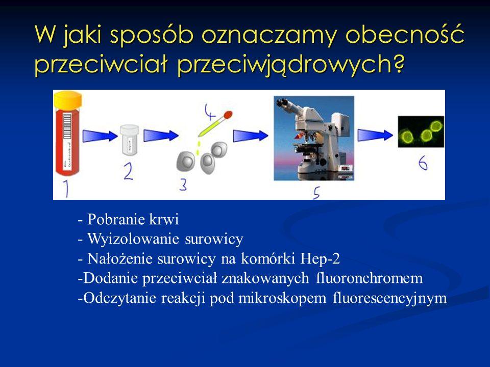 W jaki sposób oznaczamy obecność przeciwciał przeciwjądrowych? - Pobranie krwi - Wyizolowanie surowicy - Nałożenie surowicy na komórki Hep-2 -Dodanie