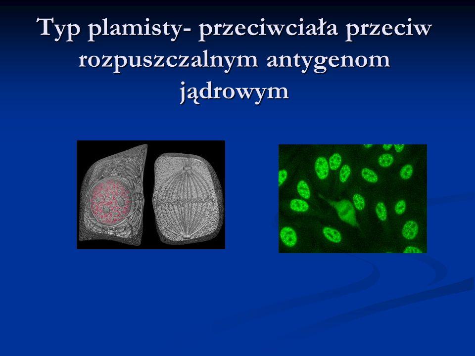 Typ plamisty- przeciwciała przeciw rozpuszczalnym antygenom jądrowym