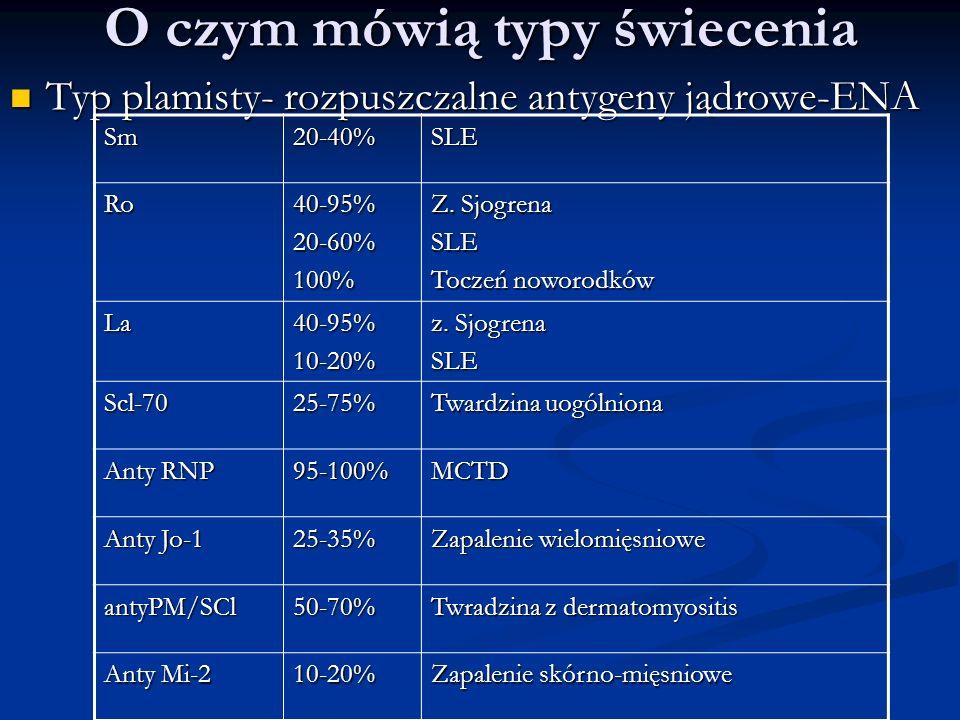 O czym mówią typy świecenia Typ plamisty- rozpuszczalne antygeny jądrowe-ENA Typ plamisty- rozpuszczalne antygeny jądrowe-ENA Sm20-40%SLE Ro40-95%20-6