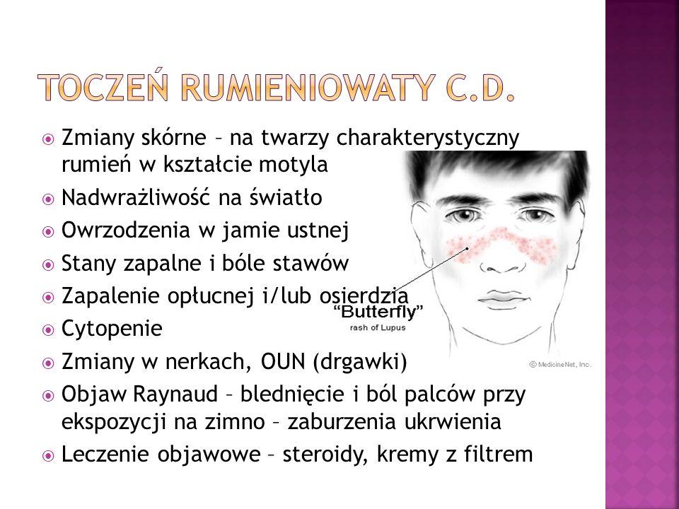 Zmiany skórne – na twarzy charakterystyczny rumień w kształcie motyla Nadwrażliwość na światło Owrzodzenia w jamie ustnej Stany zapalne i bóle stawów