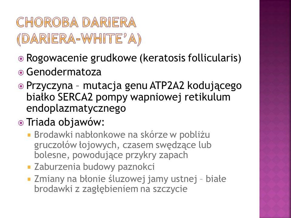 Rogowacenie grudkowe (keratosis follicularis) Genodermatoza Przyczyna – mutacja genu ATP2A2 kodującego białko SERCA2 pompy wapniowej retikulum endopla