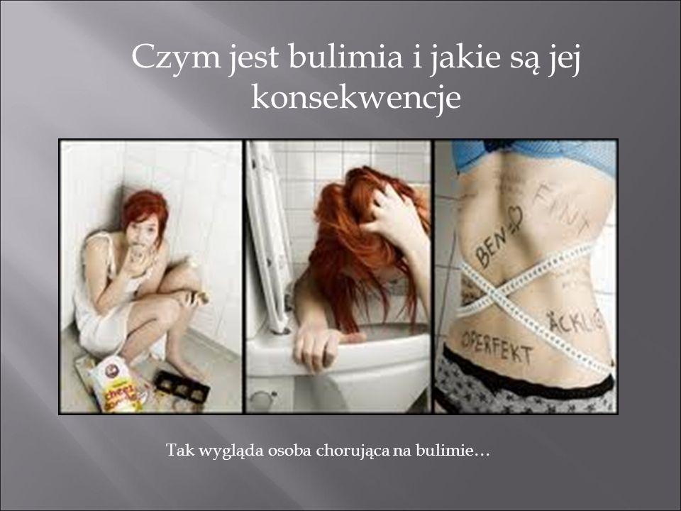 Czym jest bulimia i jakie są jej konsekwencje Tak wygląda osoba chorująca na bulimie…