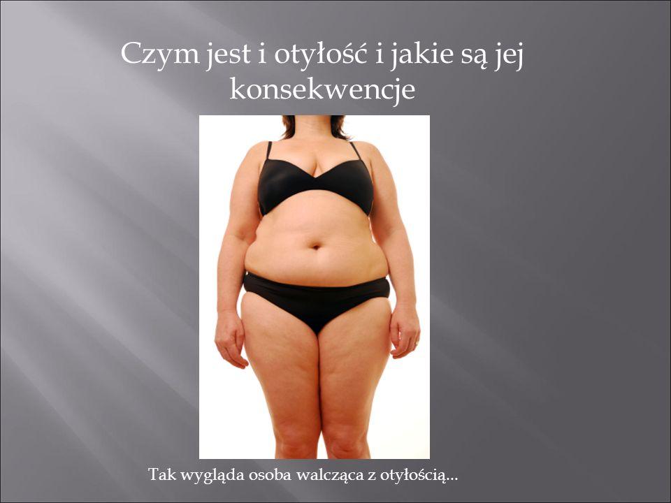 Czym jest i otyłość i jakie są jej konsekwencje Tak wygląda osoba walcząca z otyłością...