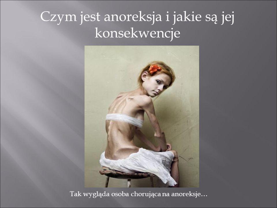 Czym jest anoreksja i jakie są jej konsekwencje Tak wygląda osoba chorująca na anoreksje…