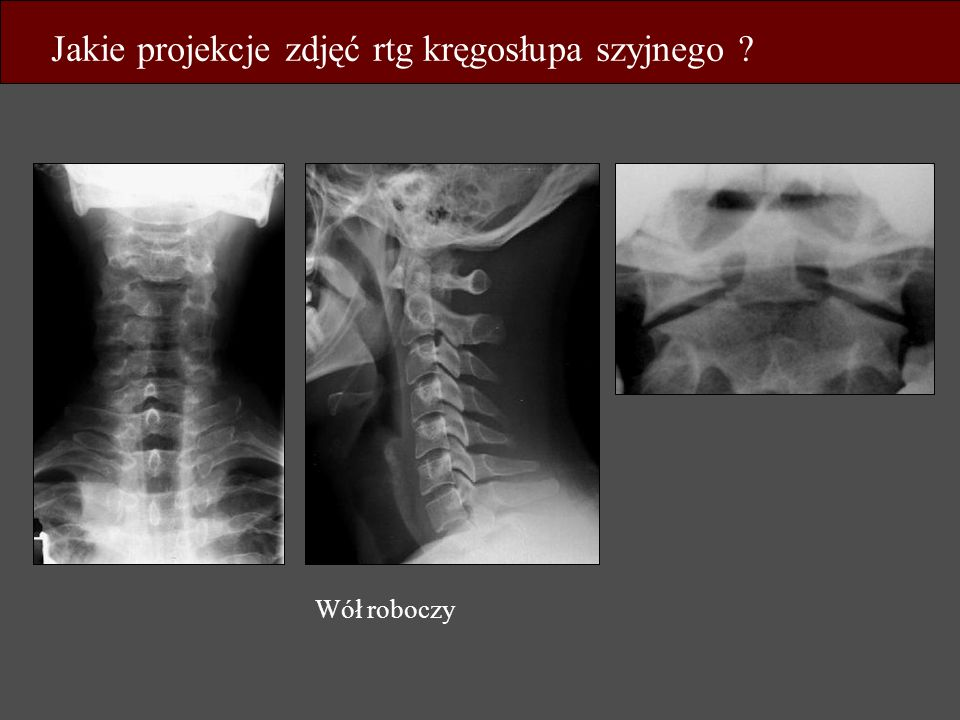 Jakie projekcje zdjęć rtg kręgosłupa szyjnego ? Wół roboczy