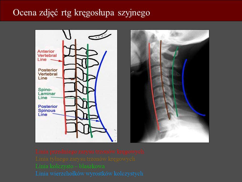 Ocena zdjęć rtg kręgosłupa szyjnego Linia przedniego zarysu trzonów kręgowych Linia tylnego zarysu trzonów kręgowych Linia kolczysto – blaszkowa Linia