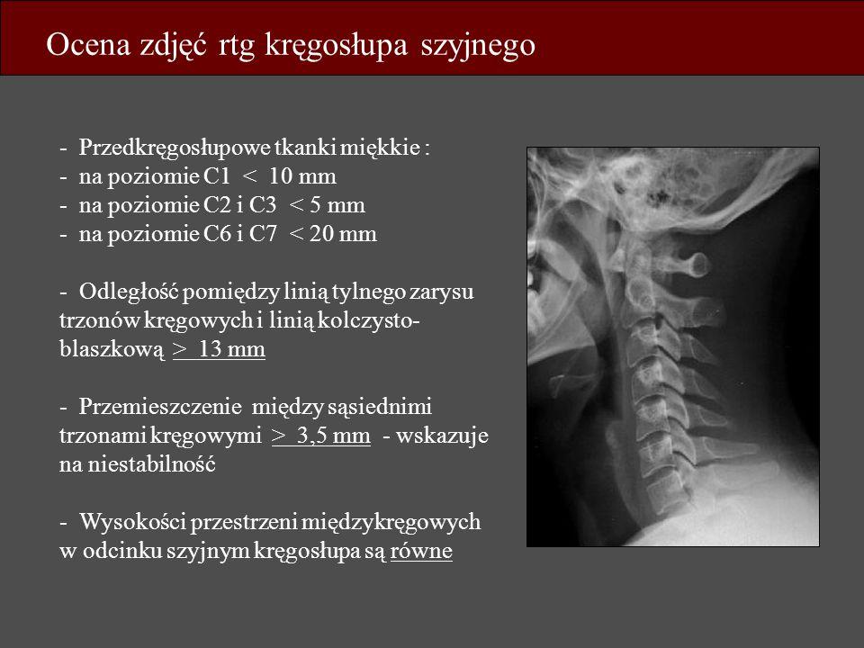 Ocena zdjęć rtg kręgosłupa szyjnego - Przedkręgosłupowe tkanki miękkie : - na poziomie C1 < 10 mm - na poziomie C2 i C3 < 5 mm - na poziomie C6 i C7 <