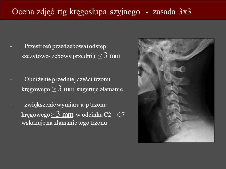 - Przestrzeń przedzębowa (odstęp szczytowo- zębowy przedni ) 3 mm - Obniżenie przedniej części trzonu kręgowego 3 mm sugeruje złamanie - zwiększenie w
