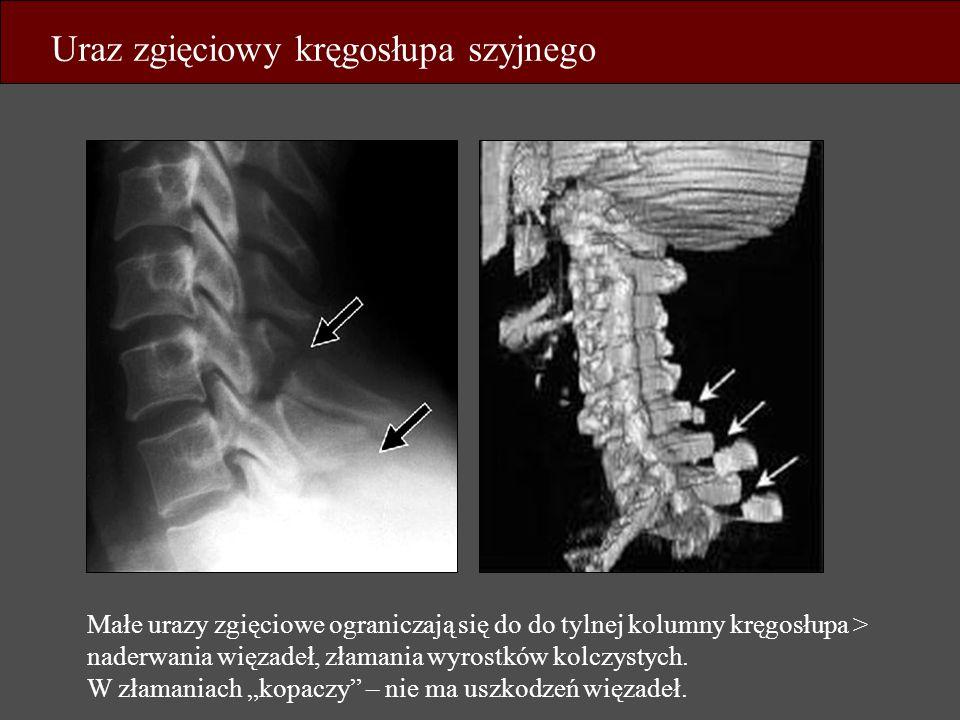 Uraz zgięciowy kręgosłupa szyjnego Małe urazy zgięciowe ograniczają się do do tylnej kolumny kręgosłupa > naderwania więzadeł, złamania wyrostków kolc