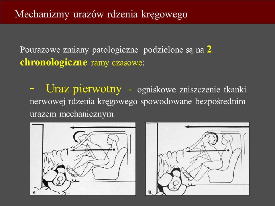 - Uraz pierwotny - ogniskowe zniszczenie tkanki nerwowej rdzenia kręgowego spowodowane bezpośrednim urazem mechanicznym Pourazowe zmiany patologiczne