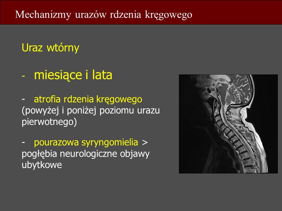 Uraz wtórny - miesiące i lata - atrofia rdzenia kręgowego (powyżej i poniżej poziomu urazu pierwotnego) - pourazowa syryngomielia > pogłębia neurologi