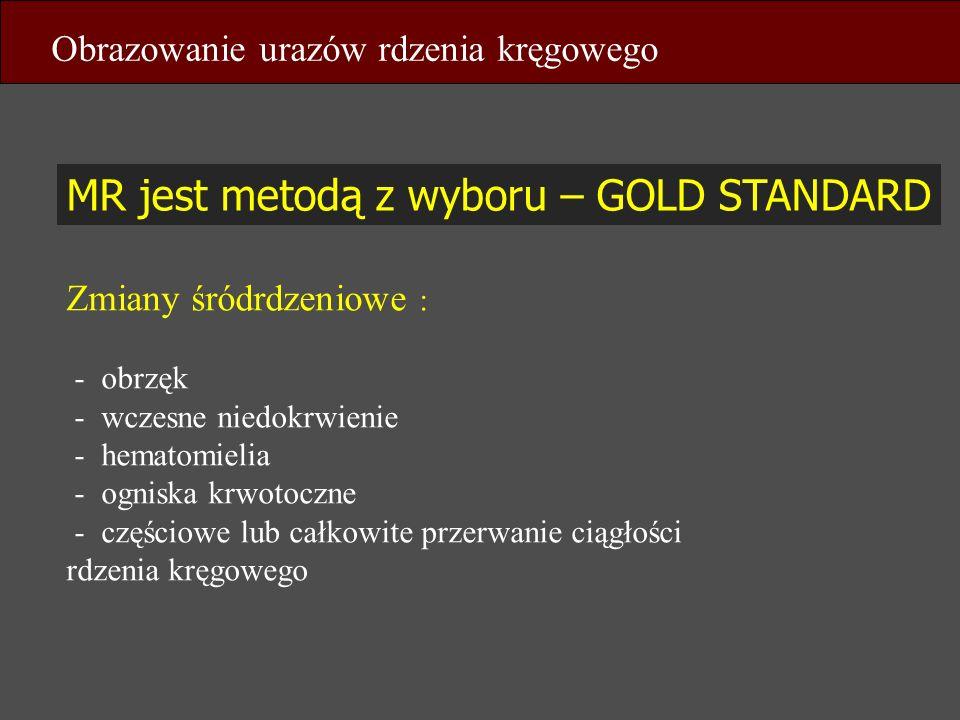 MR jest metodą z wyboru – GOLD STANDARD Obrazowanie urazów rdzenia kręgowego Zmiany śródrdzeniowe : - obrzęk - wczesne niedokrwienie - hematomielia -