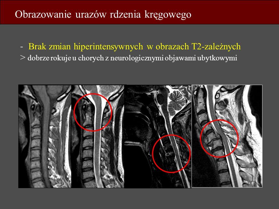 - Brak zmian hiperintensywnych w obrazach T2-zależnych > dobrze rokuje u chorych z neurologicznymi objawami ubytkowymi Obrazowanie urazów rdzenia kręg