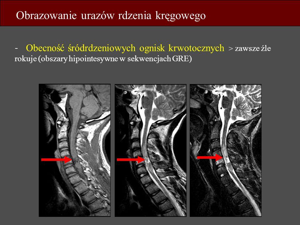 - Obecność śródrdzeniowych ognisk krwotocznych > zawsze źle rokuje (obszary hipointesywne w sekwencjach GRE) Obrazowanie urazów rdzenia kręgowego