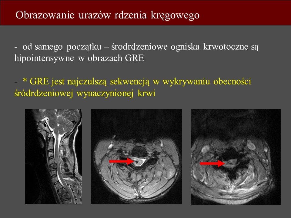 - od samego początku – środrdzeniowe ogniska krwotoczne są hipointensywne w obrazach GRE - * GRE jest najczulszą sekwencją w wykrywaniu obecności śród