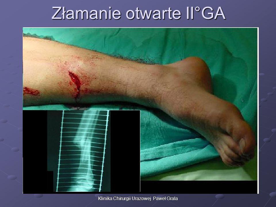 Klinika Chirurgii Urazowej Paweł Grala Złamanie otwarte II°GA
