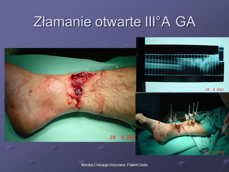 Klinika Chirurgii Urazowej Paweł Grala Złamanie otwarte III°A GA