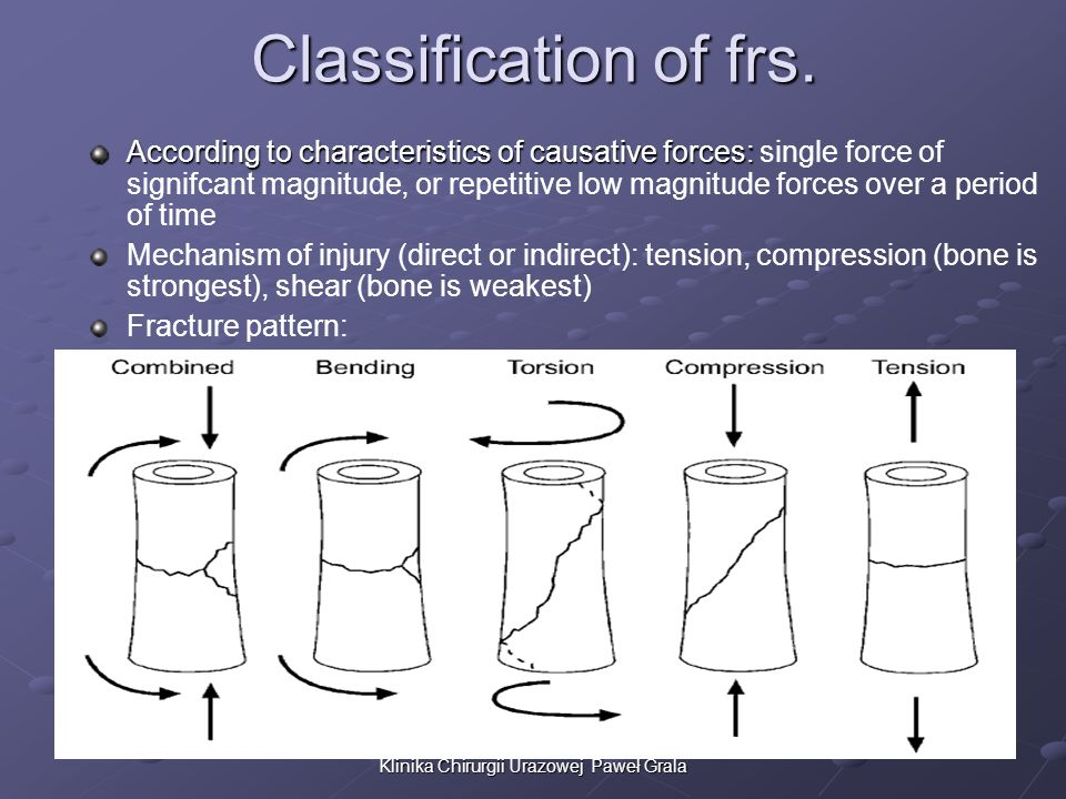 Classification of frs. According to characteristics of causative forces: According to characteristics of causative forces: single force of signifcant