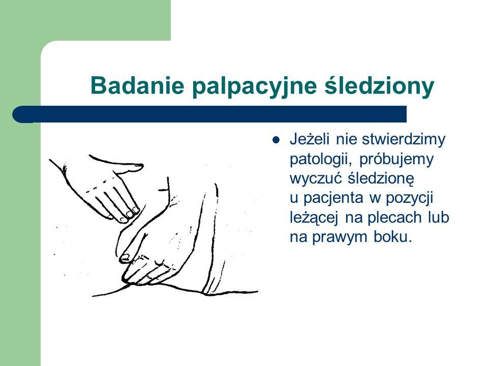 Badanie palpacyjne śledziony Jeżeli nie stwierdzimy patologii, próbujemy wyczuć śledzionę u pacjenta w pozycji leżącej na plecach lub na prawym boku.
