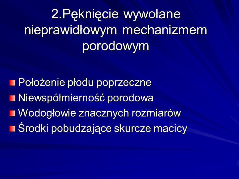 2.Pęknięcie wywołane nieprawidłowym mechanizmem porodowym Położenie płodu poprzeczne Niewspółmierność porodowa Wodogłowie znacznych rozmiarów Środki p
