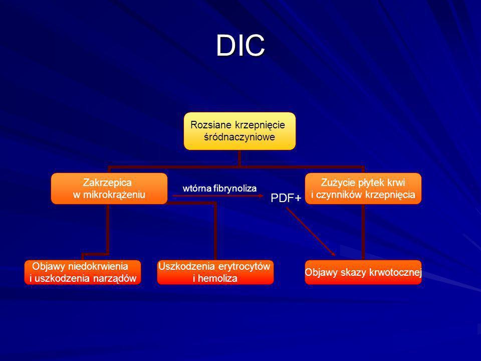 DIC Rozsiane krzepnięcie śródnaczyniowe Zakrzepica w mikrokrążeniu Objawy niedokrwienia i uszkodzenia narządów Uszkodzenia erytrocytów i hemoliza Zuży