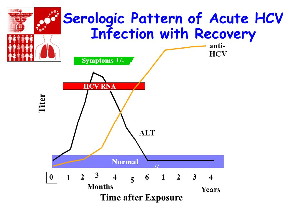 Serologic Pattern of Acute HCV Infection with Progression to Chronic Infection Symptoms +/- Time after Exposure Titer anti- HCV ALT Normal 012 3 45 61234 Years Months HCV RNA