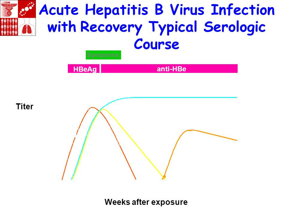 Acute Hepatitis B Virus Infection with Recovery Typical Serologic Course Weeks after exposure Titer Symptoms HBeAg anti-HBe Total anti-HBc IgM anti-HB