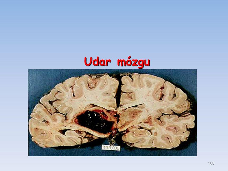 Udar mózgu 108