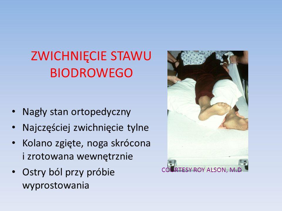 ZWICHNIĘCIE STAWU BIODROWEGO Nagły stan ortopedyczny Najczęściej zwichnięcie tylne Kolano zgięte, noga skrócona i zrotowana wewnętrznie Ostry ból przy