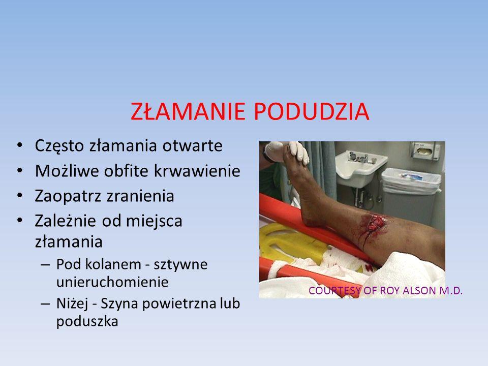 ZŁAMANIE PODUDZIA Często złamania otwarte Możliwe obfite krwawienie Zaopatrz zranienia Zależnie od miejsca złamania – Pod kolanem - sztywne unieruchom