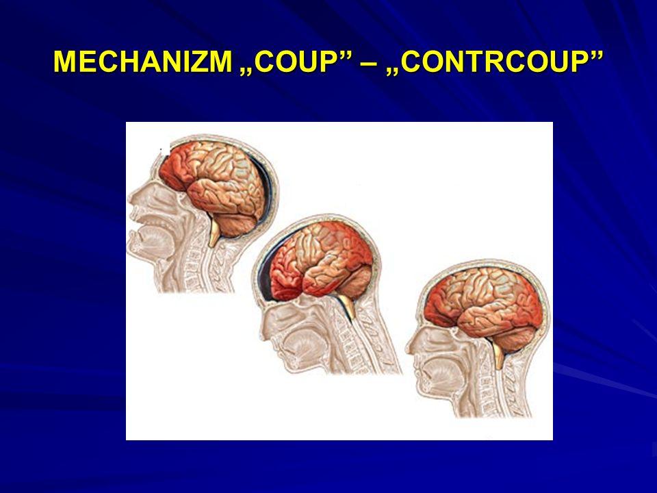 URAZ WTÓRNY OUN PRZYCZYNYPOZACZASZKOWEHipotensjaHipoksjaHiperkarbiaHiperglikemiaHipoglikemiaPRZYCZYNYWEWNĄTRZCZASZKOWE Nadciśnienie wewnątrzczaszkowe Niskie ciśnienia przepływu mózgowego mózgowego Wgłobienie mózgu Pourazowy skurcz naczyniowy