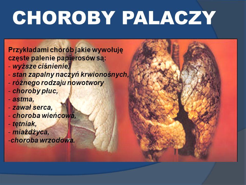 CHOROBY PALACZY Przykładami chorób jakie wywołuję częste palenie papierosów są: - wyższe ciśnienie, - stan zapalny naczyń krwionośnych, - różnego rodz