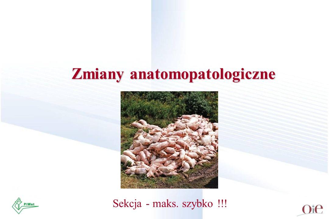 Zmiany anatomopatologiczne Sekcja - maks. szybko !!!
