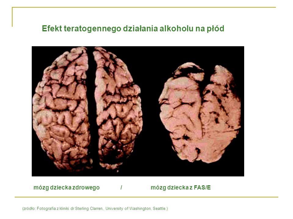 Efekt teratogennego działania alkoholu na płód mózg dziecka zdrowego / mózg dziecka z FAS/E (zródło: Fotografia z kliniki dr Sterling Clarren, Univers