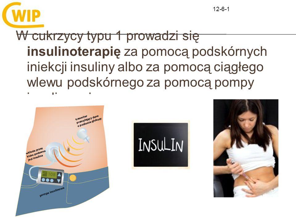 W cukrzycy typu 1 prowadzi się insulinoterapię za pomocą podskórnych iniekcji insuliny albo za pomocą ciągłego wlewu podskórnego za pomocą pompy insul