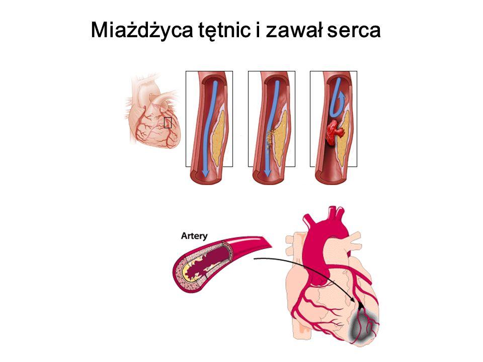 Miażdżyca tętnic i zawał serca