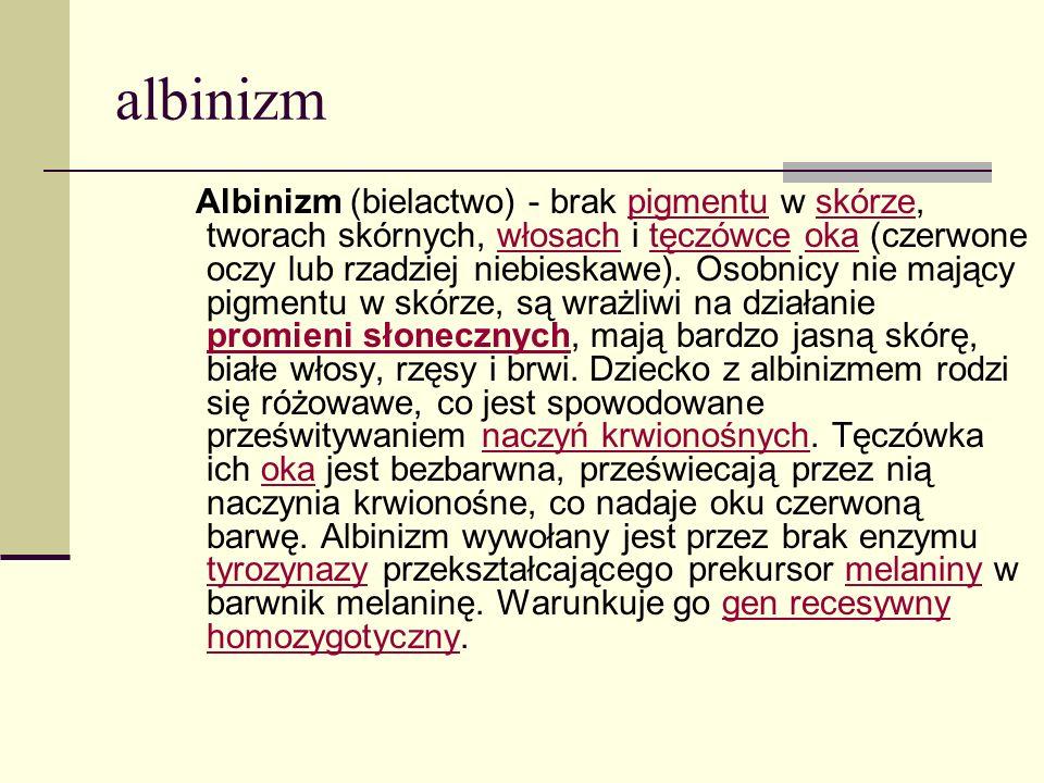 albinizm Albinizm (bielactwo) - brak pigmentu w skórze, tworach skórnych, włosach i tęczówce oka (czerwone oczy lub rzadziej niebieskawe). Osobnicy ni