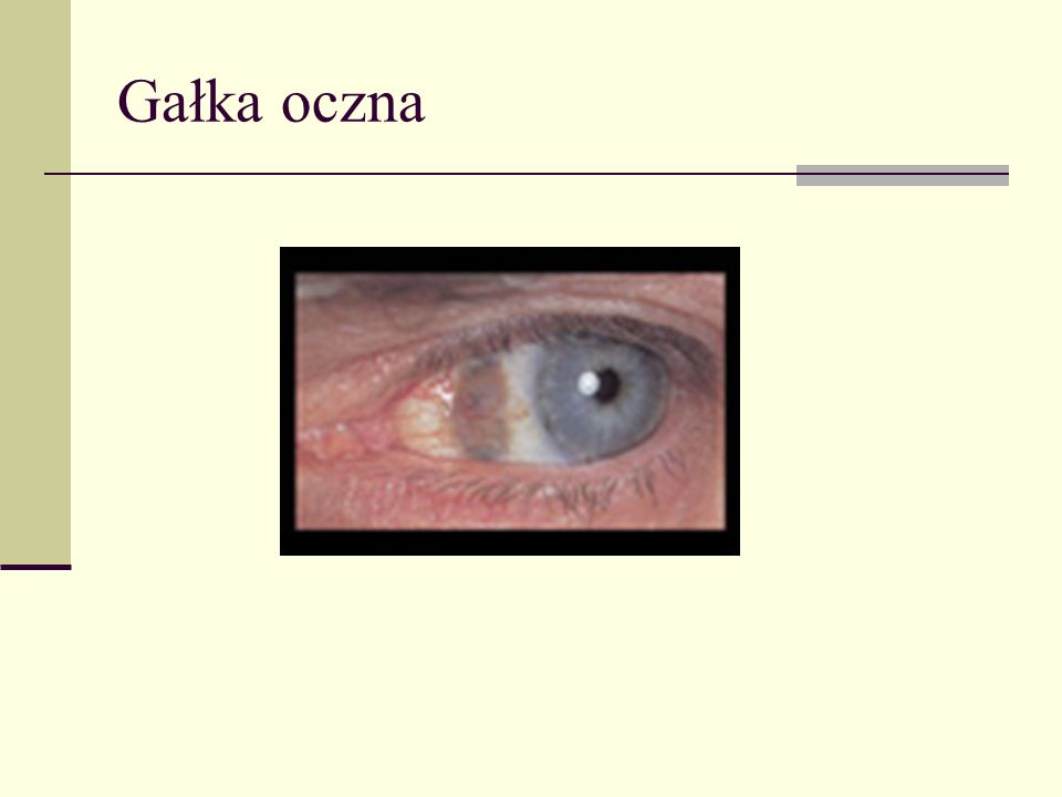 Mukowiscydoza Jedna z najczęściej występujących chorób genetycznych w rasie białej ( 1/2500 urodzeń).