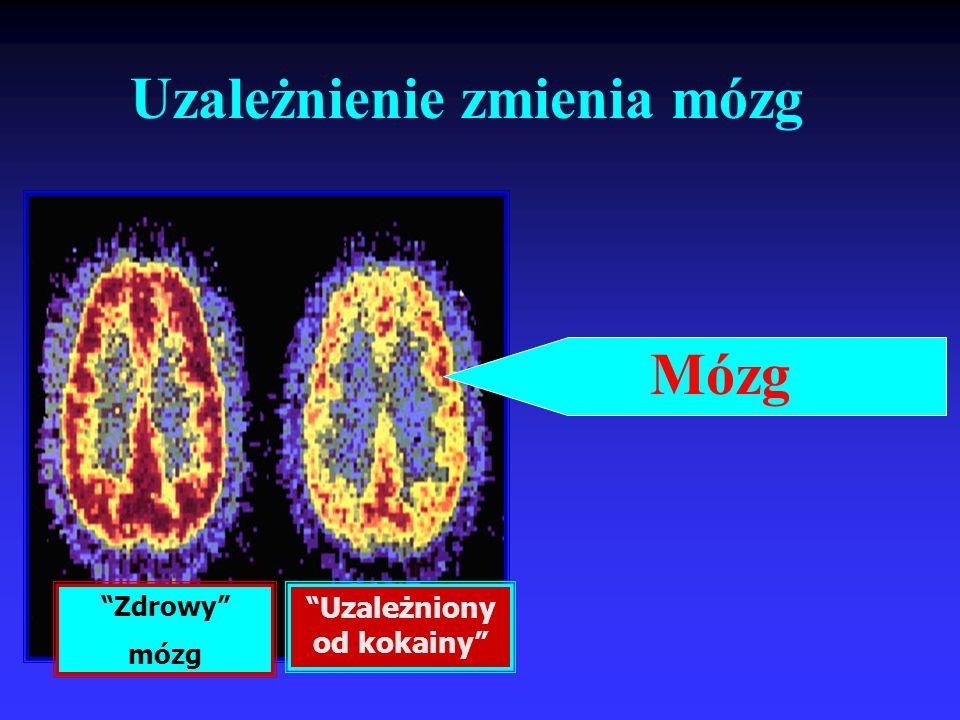 Mózg Zdrowy mózg Uzależniony od kokainy Uzależnienie zmienia mózg