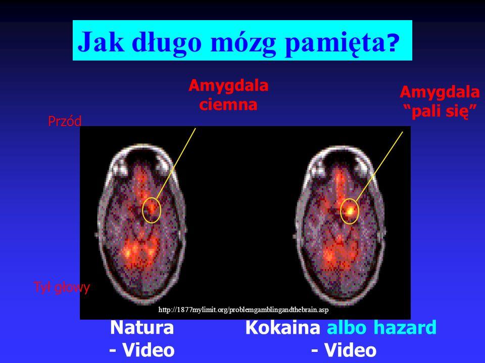 Natura - Video Kokaina albo hazard - Video Przód Tył głowy Amygdala ciemna Amygdala pali się Jak długo mózg pamięta ? http://1877mylimit.org/problemga