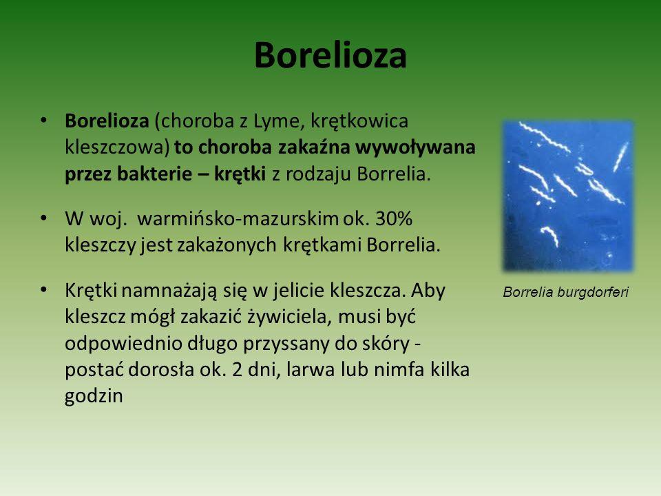 Borelioza Borelioza (choroba z Lyme, krętkowica kleszczowa) to choroba zakaźna wywoływana przez bakterie – krętki z rodzaju Borrelia. W woj. warmińsko