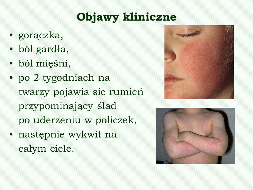 Objawy kliniczne gorączka, ból gardła, ból mięśni, po 2 tygodniach na twarzy pojawia się rumień przypominający ślad po uderzeniu w policzek, następnie