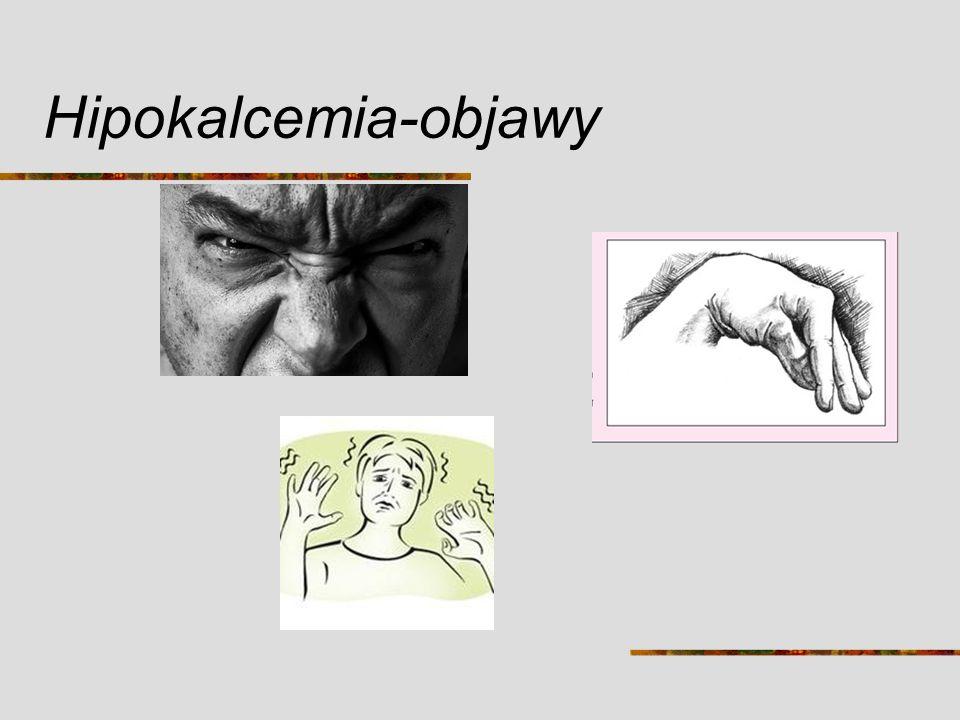 Hipokalcemia-objawy