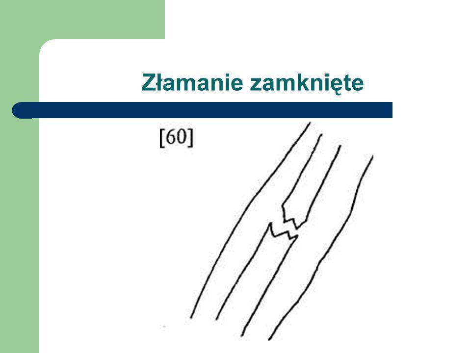 Podział złamań Złamania dzieli się na: zamknięte nie ma przerwania ciągłości skóry w okolicy uszkodzonej kości (nie ma możliwości zakażenia), otwarte