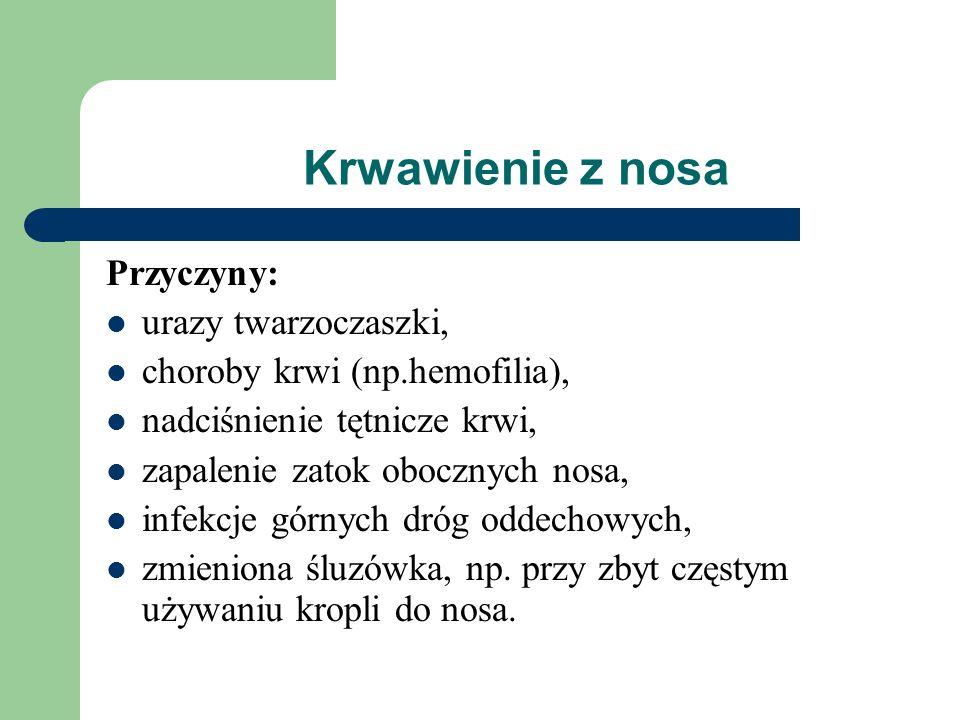 Krwawienie z nosa Przyczyny: urazy twarzoczaszki, choroby krwi (np.hemofilia), nadciśnienie tętnicze krwi, zapalenie zatok obocznych nosa, infekcje gó