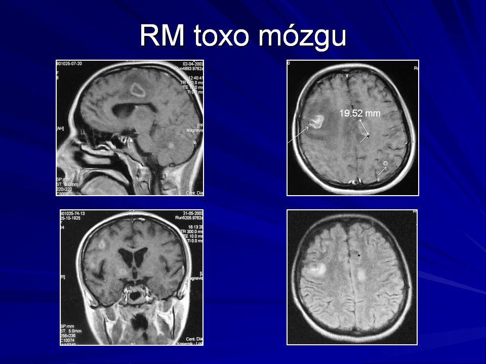 Leki z grupy inhibitorów nukleozydowych mogą działać toksycznie na mitochondria.